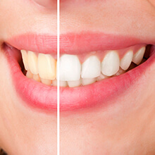 Image with half teeth before whitening and half after