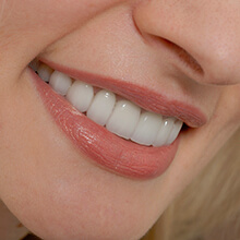 Closeup of woman's flawless smile