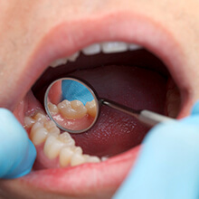 Metal-free restoration examined in dental mirror