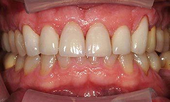 Porcelain crowns concealing yellowed and worn top teeth