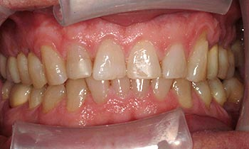 Yellow and worn top teeth