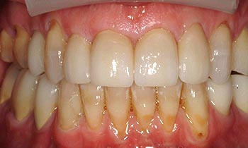 Top teeth perfected with porcelain crowns