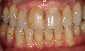 Severely discolored top teeth