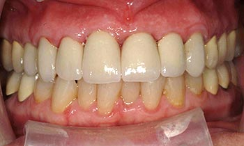 Top teeth enhanced with porcelain crowns