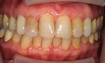 Discolored top teeth