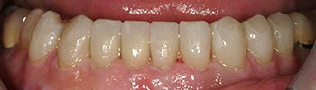 Bottom teeth enhanced with porcelain crowns