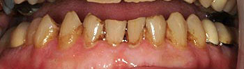 Decayed and discolored bottom teeth