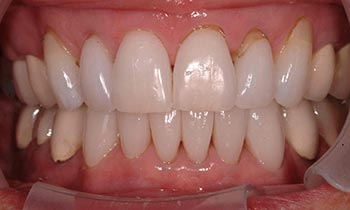Top and bottom teeth with porcelain crowns