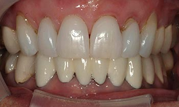 Discolored top and bottom teeth