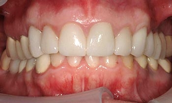Tooth discoloration at gums concealed with porcelain crowns