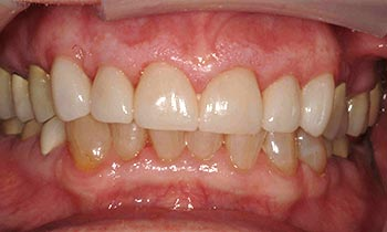 Porcelain crowns on front six teeth