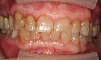 Broken and yellowed front teeth