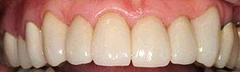 Top teeth fully repaired with porcelain crowns