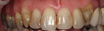 Decayed teeth and yellowed restorations