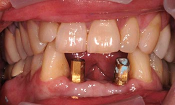 Two dental implant posts in front of mouth