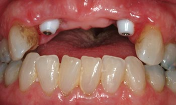 Dental implants protruding from top gum line