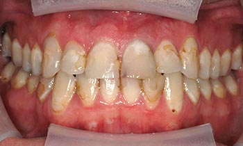 Yellowed and stained teeth