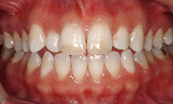 Discolored and worn front teeth