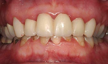 Damaged and discolored bottom teeth