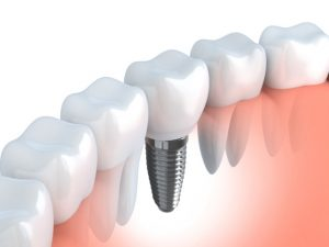implant dentist in Westfield