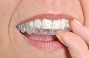 dentist in westfield on invisalign