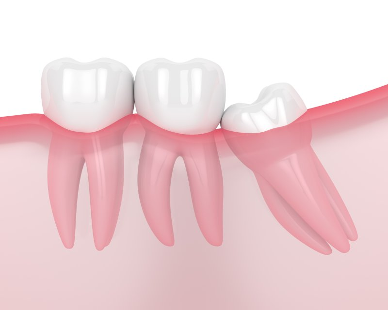 Wisdom tooth crowding natural teeth